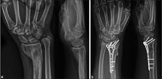 Xray of plate fixation of wrist fracture