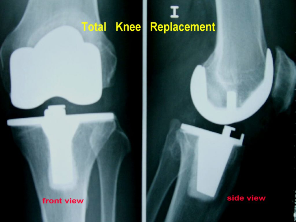 Picture of X-ray total knee replacement